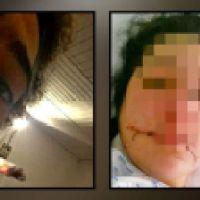 Scharia-Gericht in Laupheim: 17-Jähriger Messer in die Brust gestoßen und das Gesicht zerschnitten